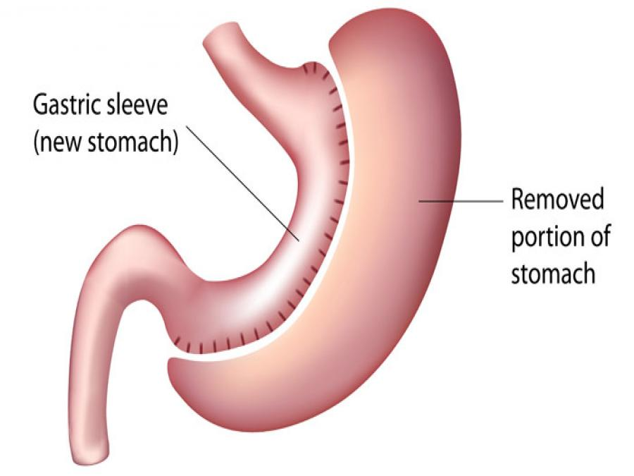 All Terminals In Laparoscopic Sleeve Gastrectomy