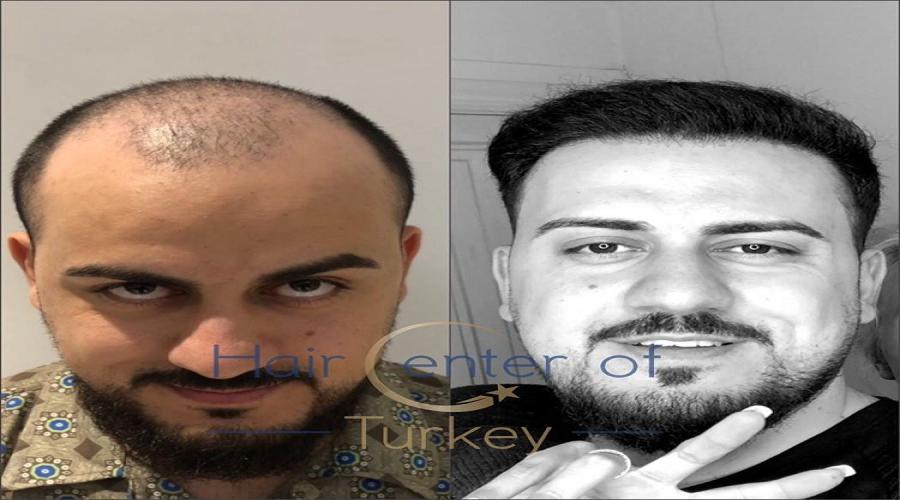 HAİR CENTER OF TURKEY