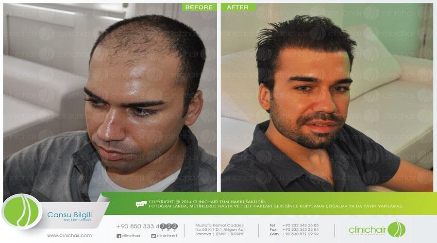 Clinichair Hair Transplant Center